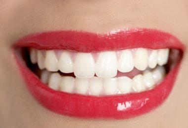 best dentists in Tijuana