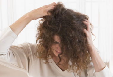 women-scratching-itchy-head