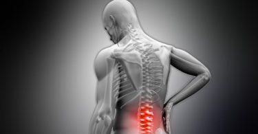 Spinal Decompression Centre Calgary