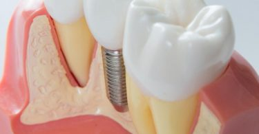 dental-implant[1]