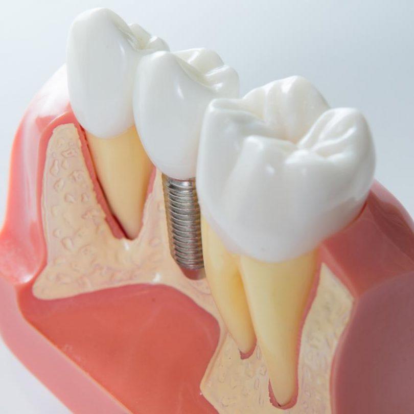 dental-implant[1]