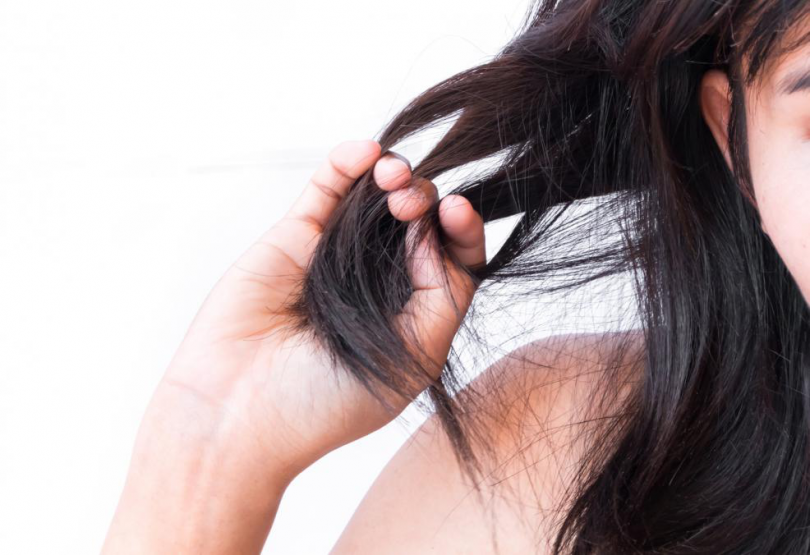 Treat Your Hair Loss Quickly