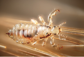 5 Facts About Head Lice You Wish You Knew Earlier