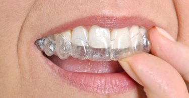 Invisible Braces