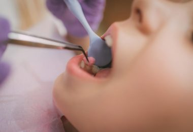 Quality Dental Services in Calabasas