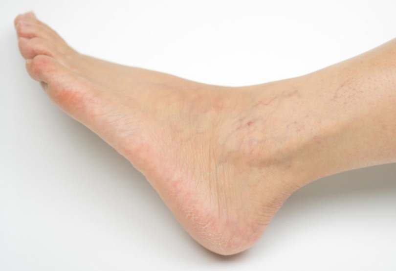 Image showing vein treatment