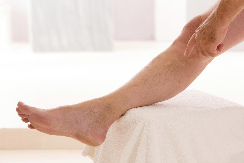 Image showing vein treatment and therapy