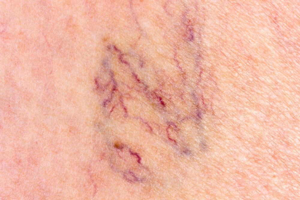 Image showing spider vein doctor NYC
