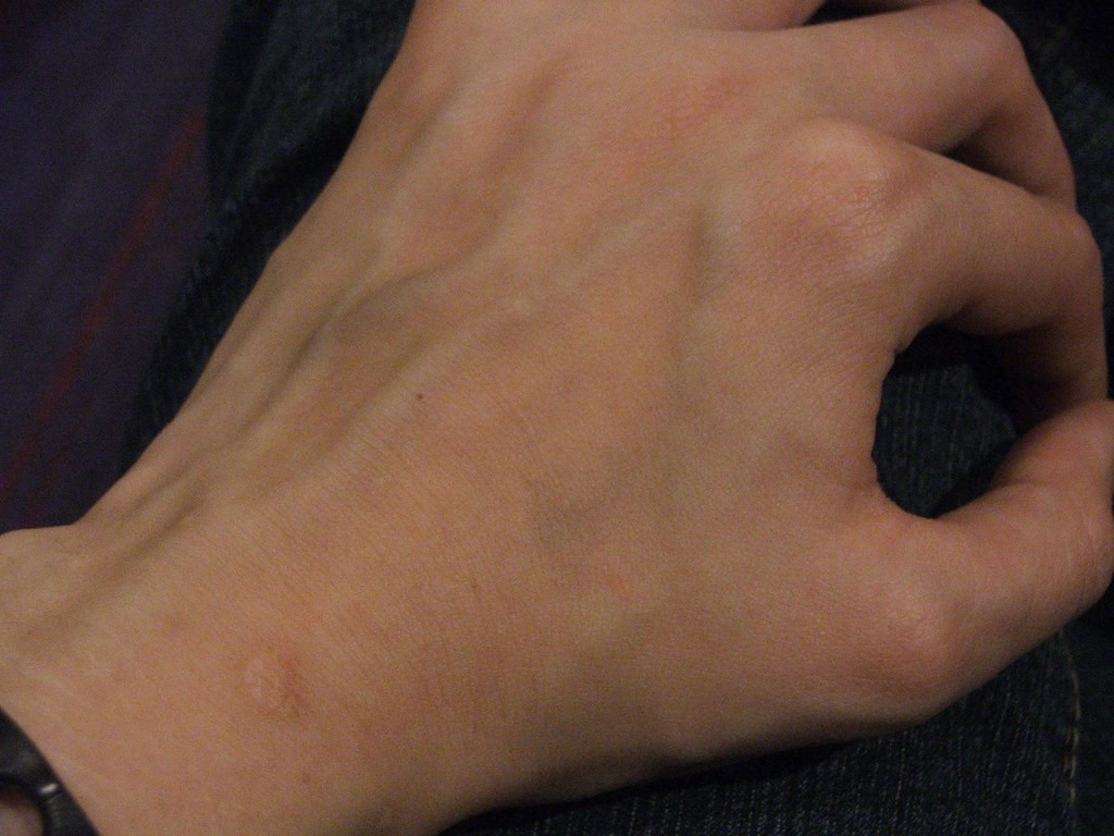 Vein Issues in The Hands and Arms