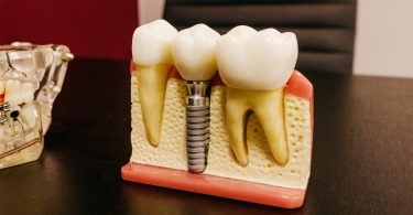 An image illustrating the screw usage in Dental Implants