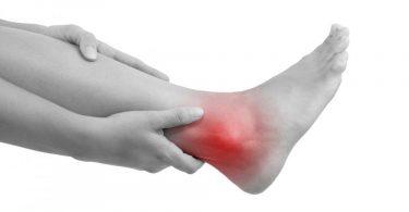 A women with an Achilles tendon rupture