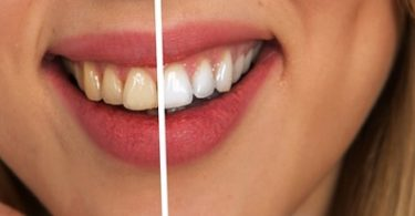A contrast of the same image with white teeth and discolored teeth.