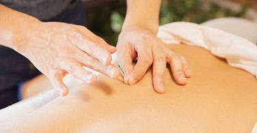 A professional performing acupuncture treatment on a clients back