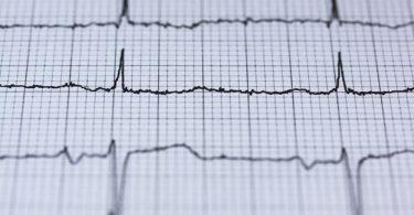 A cardiogram