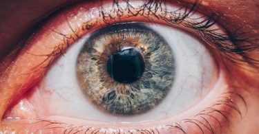 3 Common Eye Infections and their causes