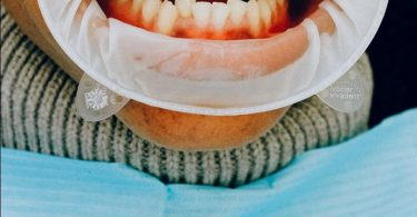 A dental inspection of a person's mouth