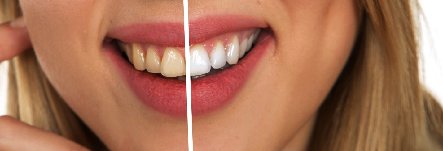 A person smiling with half white and half brown teeth